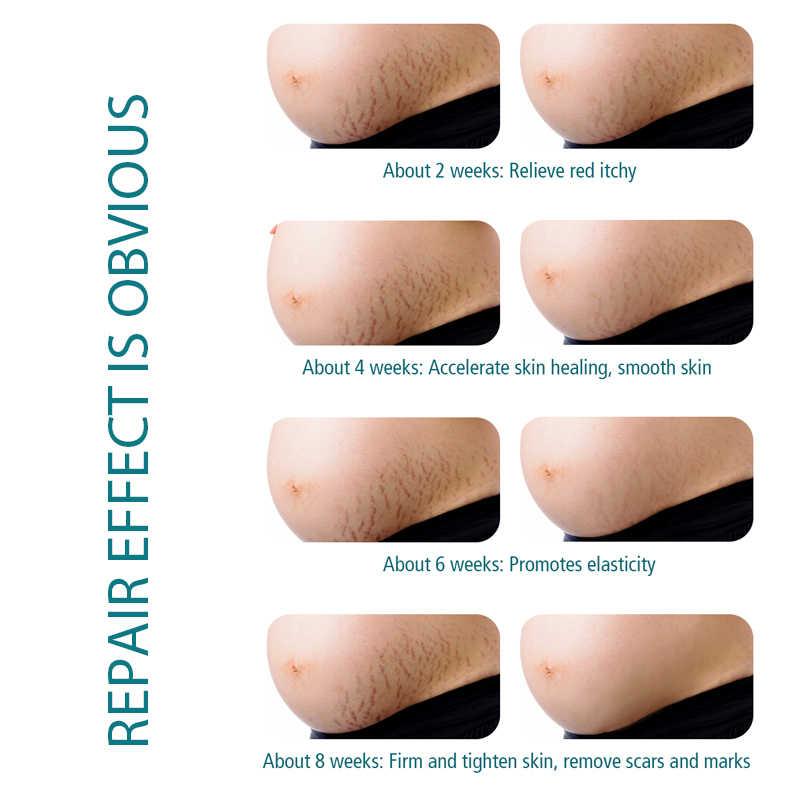 Stretch Mark Remover Hautpflege Narben Creme Von Stretch Marks Mutterschaft Behandlung Narbe Reparatur Straffende Hautpflege Körper Butter Creme