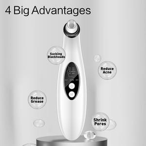 Image 4 - Cagabi C1 Mitesser Makel entferner Gesicht Tief Poren Akne Pickel Entfernung Vakuum Saug Gesichts Schönheit