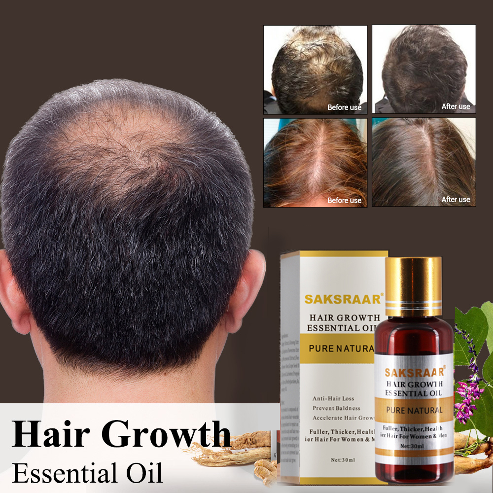 Hair Care Hair Growth Essential Oils Essence  1