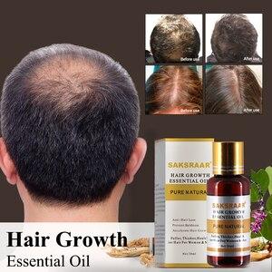 Image 1 - Haarverzorging Haargroei Essentiële Oliën Essentie Originele Authentieke 100% Haaruitval Vloeistof Gezondheidszorg Schoonheid Dichte Haargroei Serum