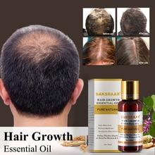 Óleos essenciais anti queda de cabelos, sérum original autêntico para saúde dos cabelos e crescimento saudável