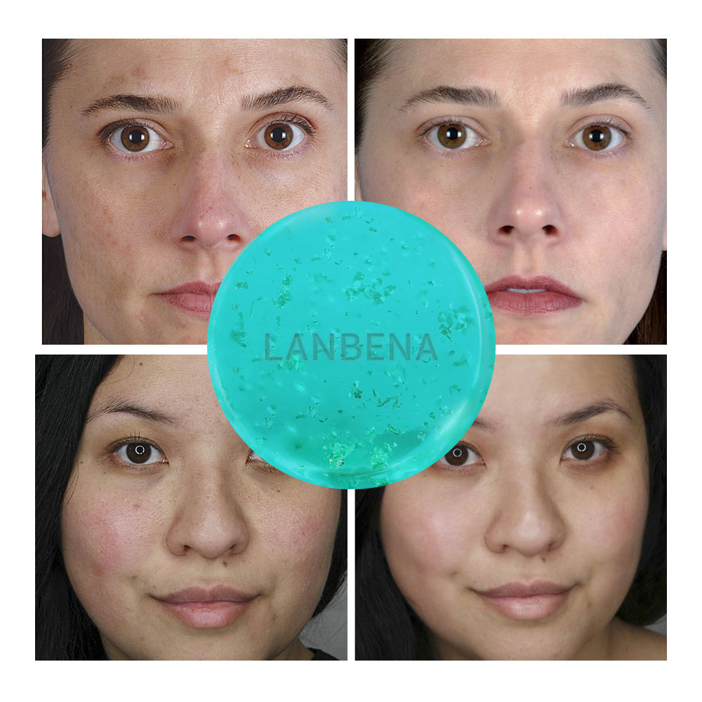 LANBENA Hyaluronic Acid Handmade Soap Face Cleaner Moisturizing Acne Treatment Repair Whitening Anti-Aning Winkles Facial Care