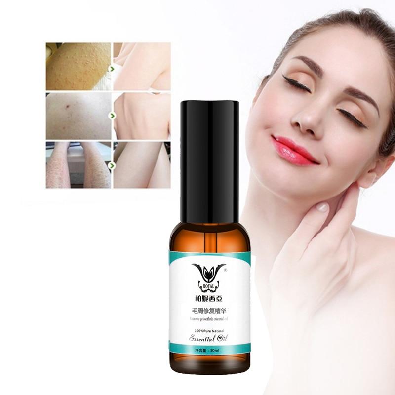Chicken Skin Folliculitis Treatment Exfoliating Shrink Pores Keratosis Pilar Remover Essential Oil