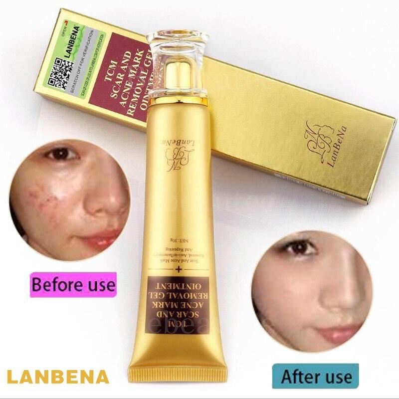 Scar Removal Gel Ointment Acne Mask Lambena Anti-inflammatory & Repairing Skin Repair Whitening Cream Lanbena Against Black Dots