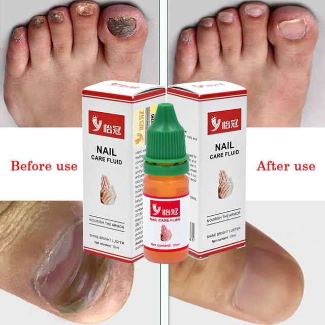 10ml Toe Nail Fungus Treatment Kills 99.9% Bacteria Anti Fungal Nail Infection Remove Fungus Nail Cure Treatment Onychomycosis 1