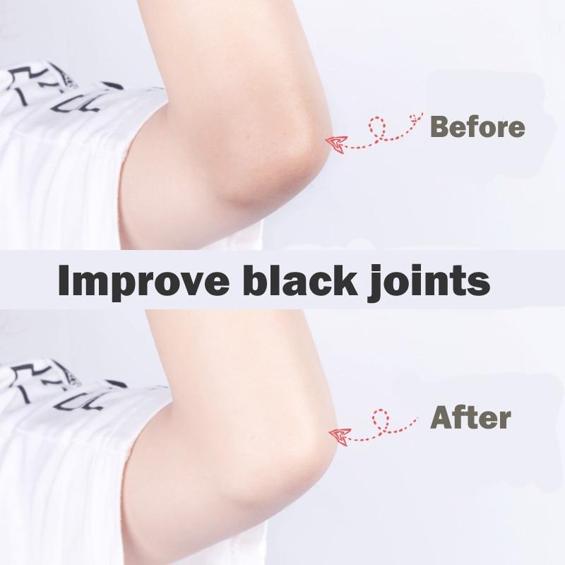 Niacinamide Whitening Body Scrub Cream Moisturizing Skin Exfoliating for Whole Body Pimple Removal Whitening Joints Bath Using 3