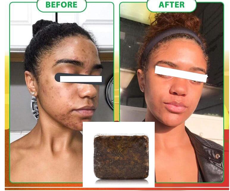 Африканское черное мыло Magic Anti Rebelles, увлажняющее масло ши, натуральное мыло для тела, лечение акне, уход за кожей
