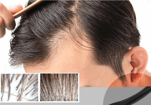 Livraison directe DRS 540 Derma Roller 0.2/0.25mm aiguilles titane Mezoroller Dr stylo Machine pour soins de la peau perte de cheveux traitement stylo