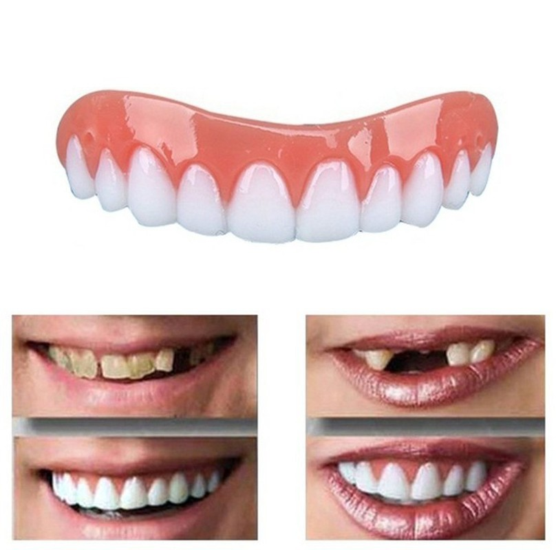 1 Set Perfect Silicone Snap Top & Bottom Flex Veneer Cosmetic Flex Denture Teeth Whitening Cover Simulation Braces