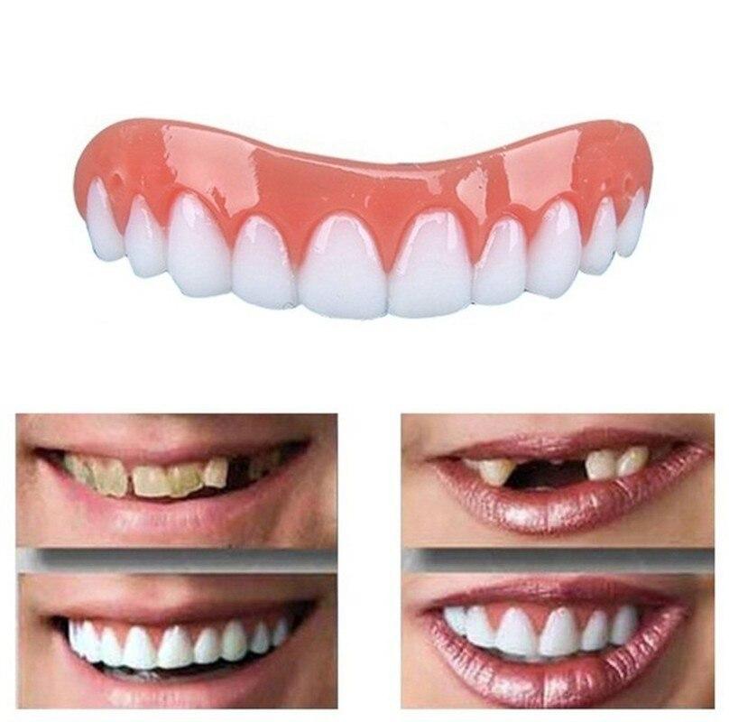 1 Set Perfect Silicone Snap Top & Bottom Flex Veneer Cosmetic Flex Denture Teeth Whitening Cover Simulation Braces