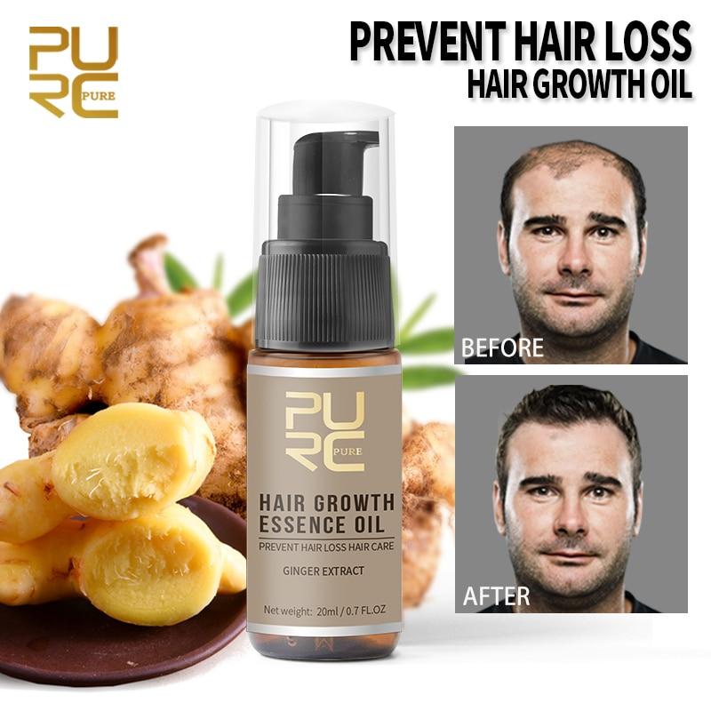 20ml purc crescimento do cabelo óleo essencial reparação produto prevenção da perda de pomada beleza densa cuidados com o cabelo soro tratamento tslm1