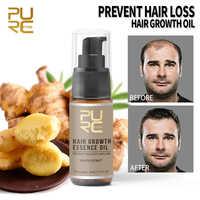 Aceite esencial para el crecimiento del cabello PURC, 20ml, producto reparador, prevención de la pérdida de pomada, densidad belleza, tratamiento de suero para el cuidado del cabello TSLM1