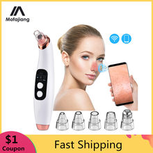 Blackhead Vacuum Visible Black Head Remover Facial Pore Cleaner Microscope Blackhead Suction Rechargeable Acne Pimple Remove