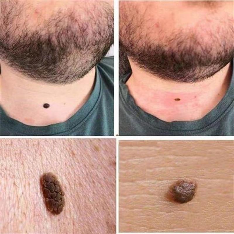 Mole & Genital Wart Remover  5