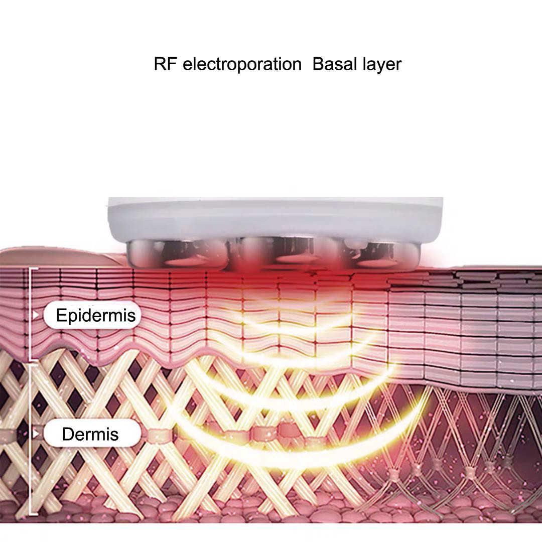 Eletroporação facial de radiofrequência, removedor de rugas, rejuvenescimento da pele, ems, mesoterapia