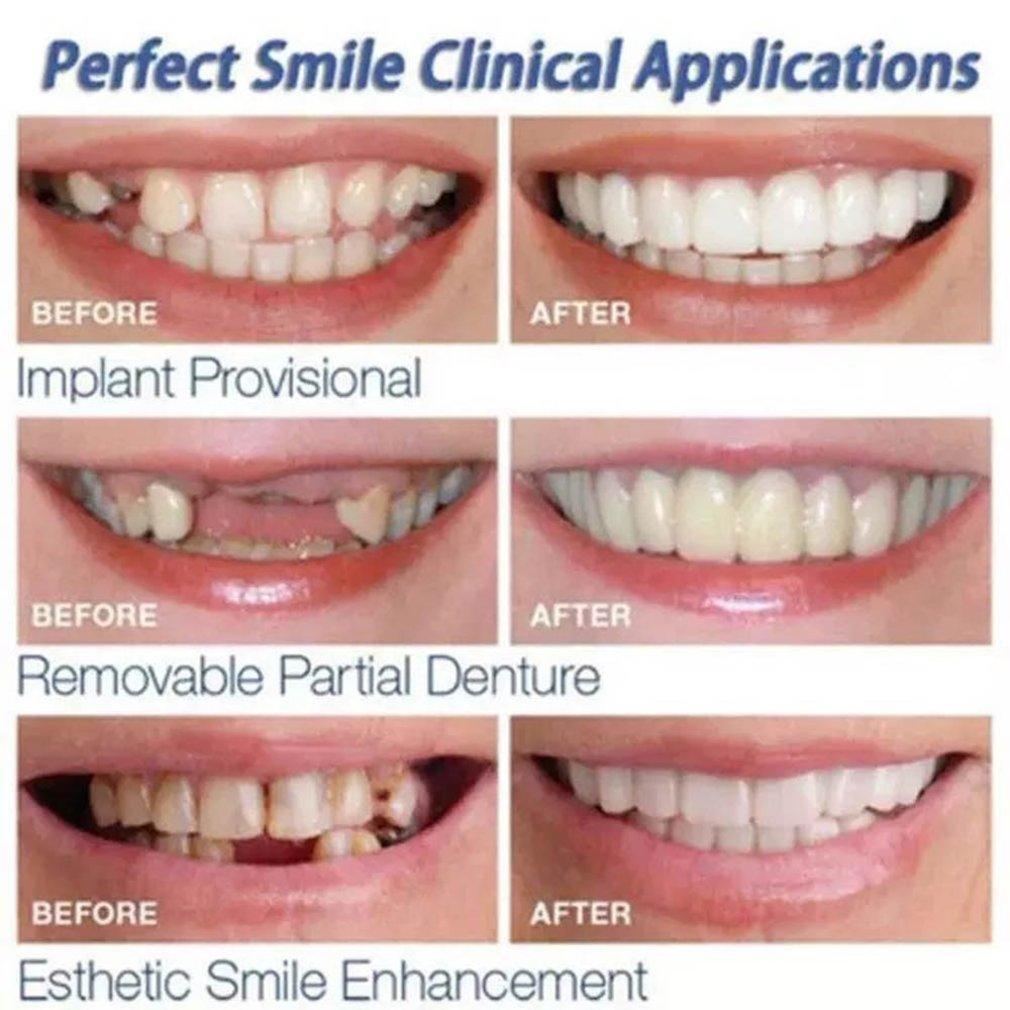 Beautiful Smile Veneers Teeth Braces Comfort Fit Cosmetic Wear Resistance Teeth Denture Teeth Simulation Braces