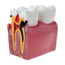 6 Times Dental Caries Comparation Anatomy Teeth Model for Dental Anatomy Lab Teaching Studying Researching Tool dental premature disease teeth model transparent caries pathological demonstration tooth child study teaching showing 2018