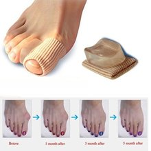 1Pc Feet Care Special Hallux Valgus Thumb Orthopedic Deliver Braces Correct Daily Silicone Against Big Bot Foot Care Tool(China)
