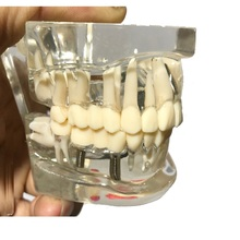 Crystal Dental Disease Teeth Model With Restoration Bridge Tooth For Medical Science Dental Disease Teaching Model
