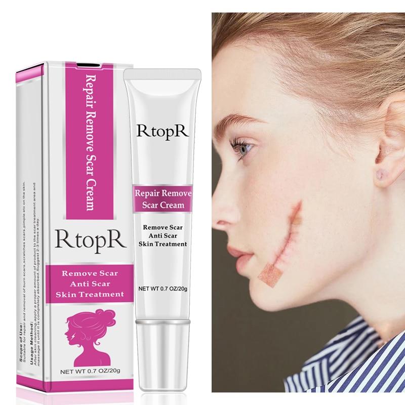 Blackhead Whitening Cream Skin Care Acne Scar Stretch Marks Remover Cream Skin Repair Face Cream Acne Spots Acne Treatment