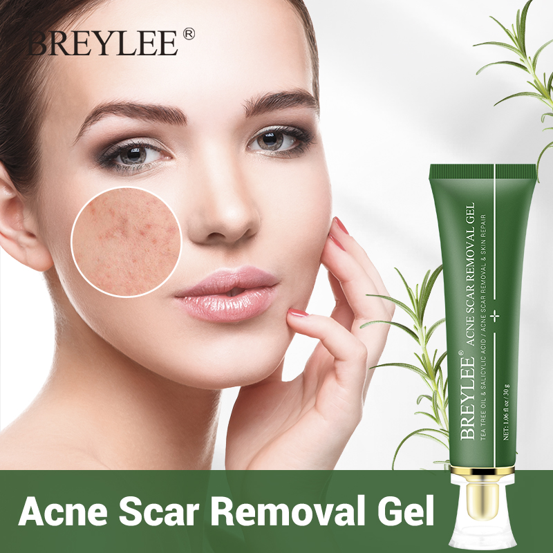 Breylee Acne Scar Removal Gel Fade Acne Marks Spots Remove Skin Pigmentation Soothing Prevent Acne Treatment Serum Essence 30g Serum Aliexpress