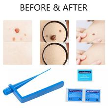 Skin tag remover Remove wart Acne Pimple Blemish Treatments Tag Removal kit Face Care Tool with cleansing swab Dropshipping