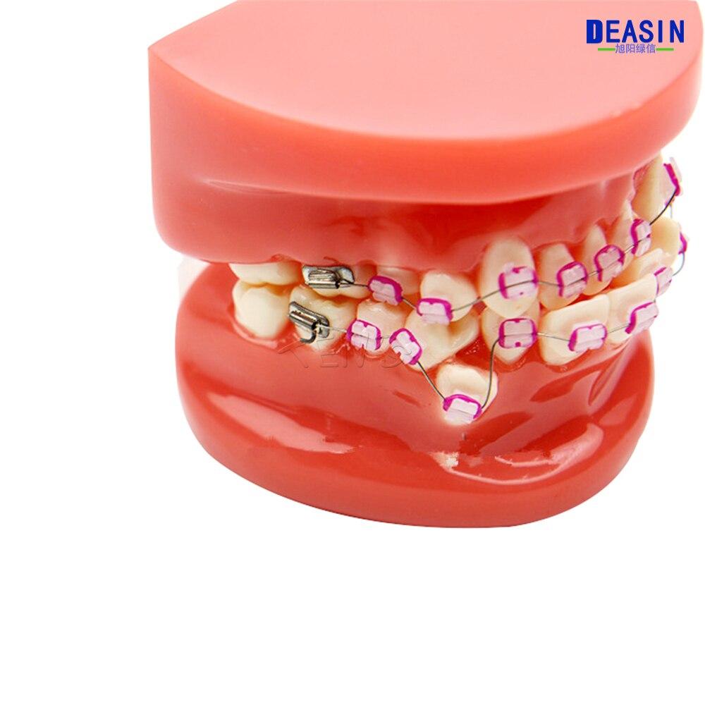 龅牙 (12)