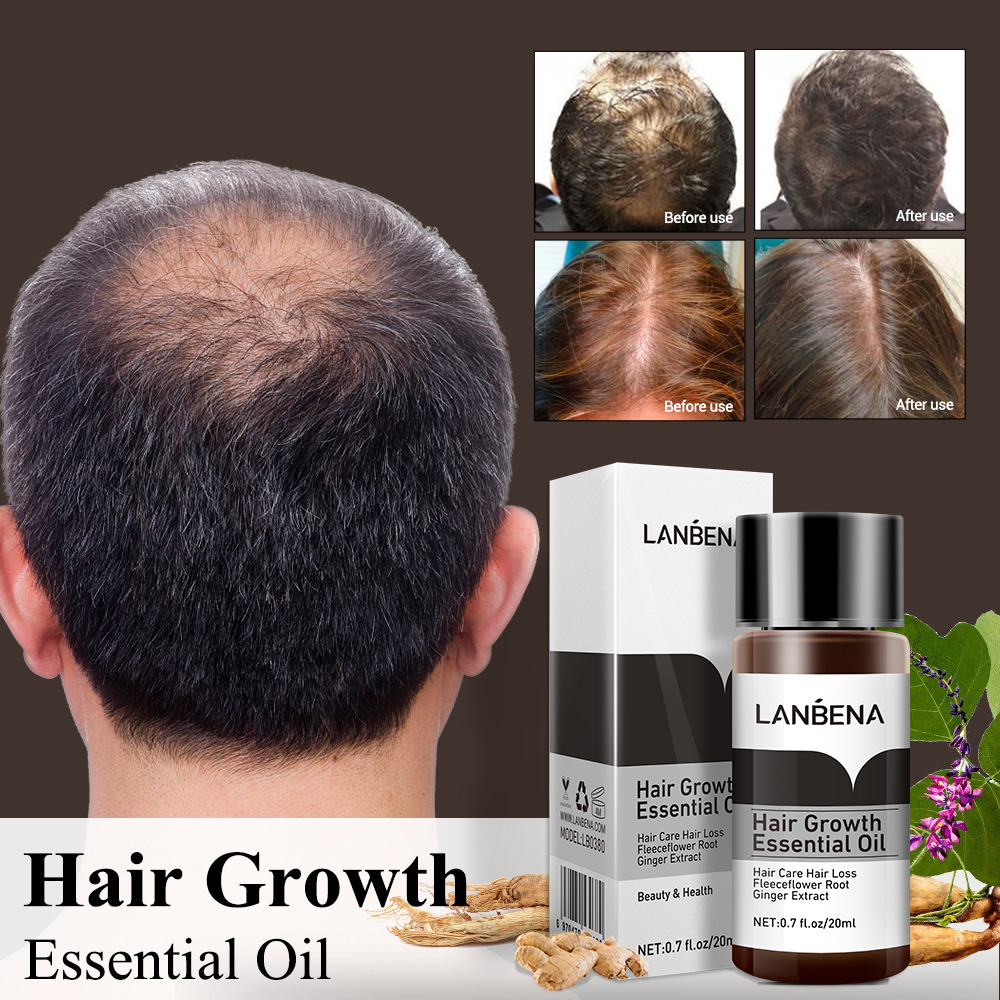 LANBENA Fast Powerful Hair Growth Essence Effectively Prevent Hair Loss Essential Treatment for Women Men Hair Care Products