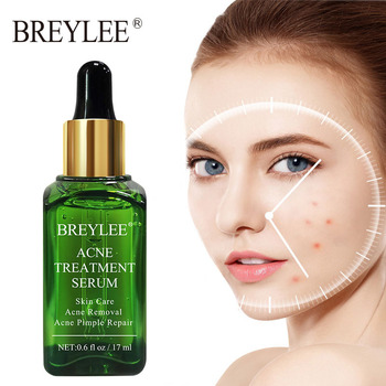 BREYLEE Acne Treatment Face Serum Anti Acne Pimple Scar Remover Moisturizing Oil-Control Whitening Shrinking Pores Essence 1