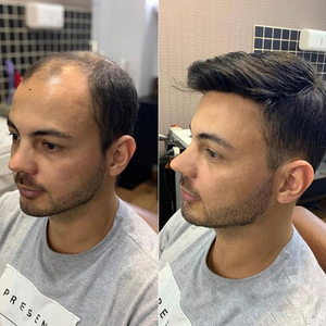 100% humano toupee masculino 10x7