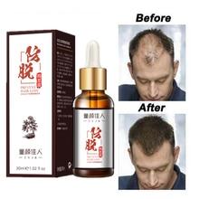 Hair Growth Essential Oils Essence Grow Hair Treatment Prevent Hair Loss Health Care Beauty Dense Baldness Hair Growth Serum prolife prolife dual fresh adult сухой корм для собак с ягненком буйволом и рисом 12 кг