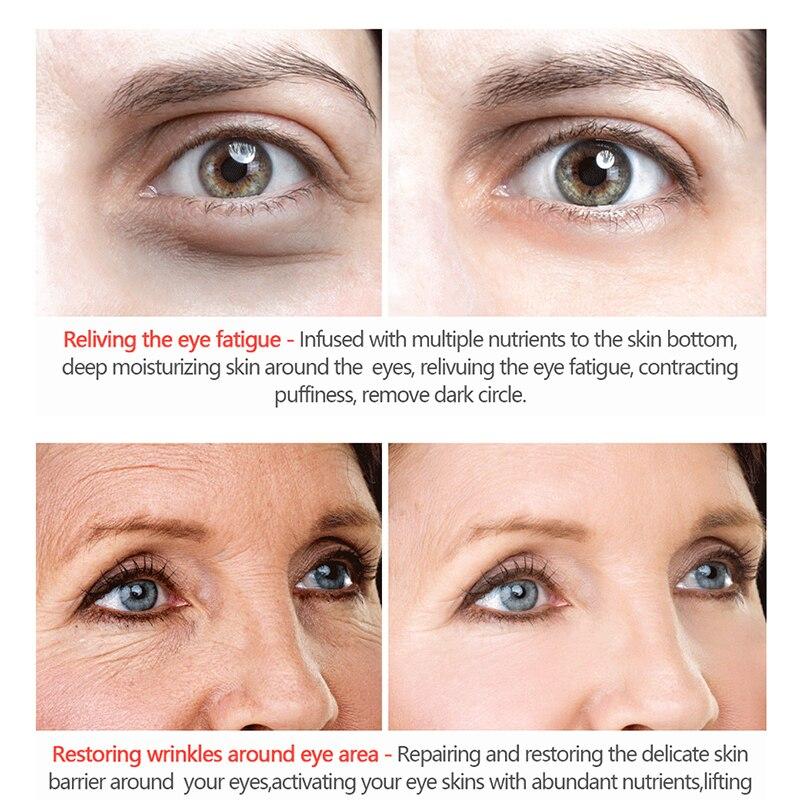 Eye-Cream-Lighten Anti-Age-Remover Collagen-Serum Puffiness Dark-Circle Against