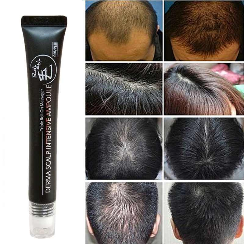 20ml NATURAL Hair Growth Serum Derma Scalp Triple ROLL Massager Fast Regrow เส้นผมผม Essence ใหม่ Reccomend