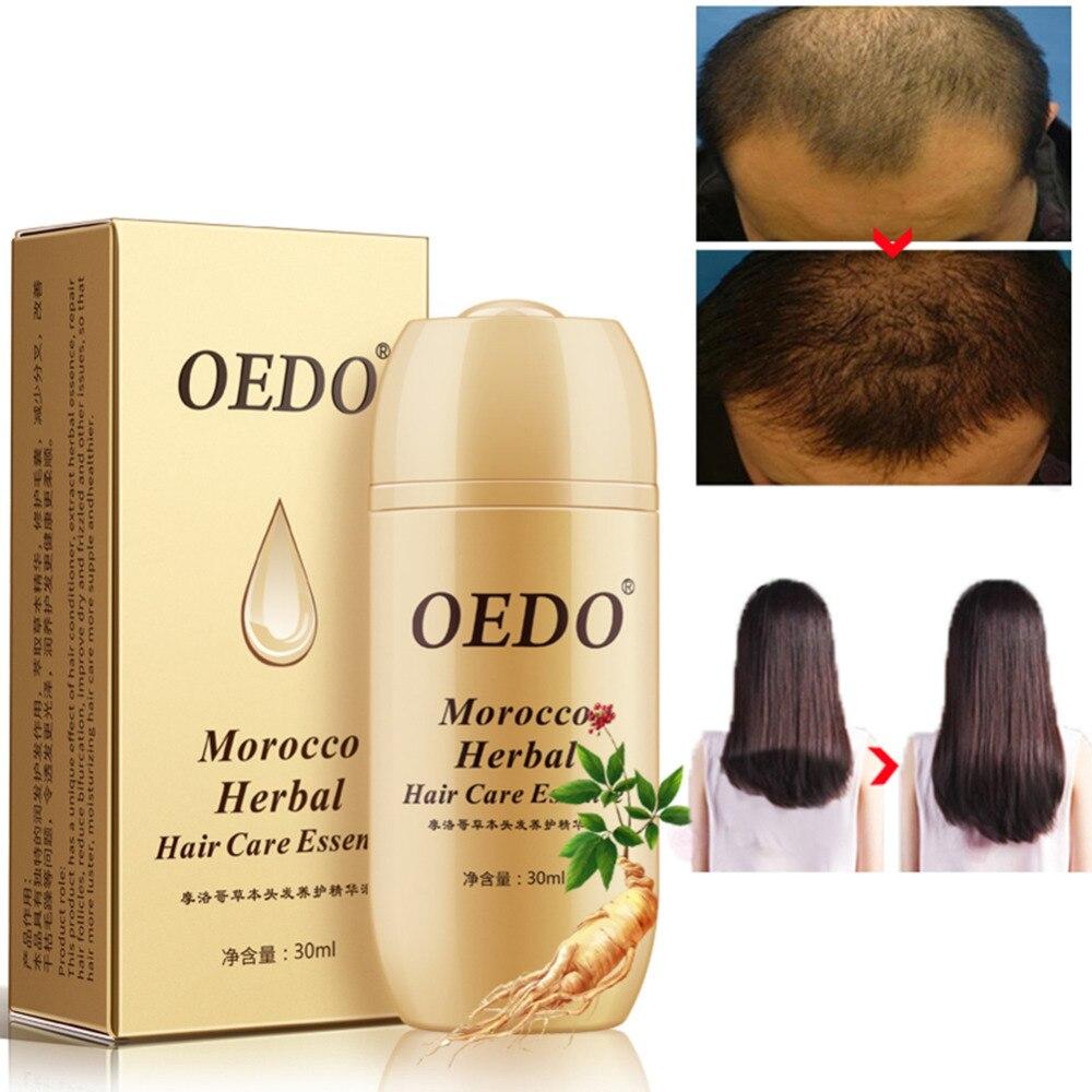 30ML Morocco Ginseng Hair Care Essence Treatment Hair Loss Fast Powerful Hair Growth Serum Repair Hair Root Hair Care TSLM2