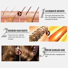 New Hair Growth Spray Fast Grow Hair Hair Loss Treatment For Thinning Care 30ml Hair Hair T4U7