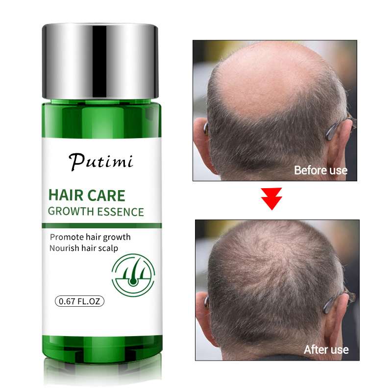 Putimi Hair Growth Scalp Treatments Essence Oil Hair Care Fast Help Liquid Hair Loss Oil Effective Prevent Baldness Care TSLM1