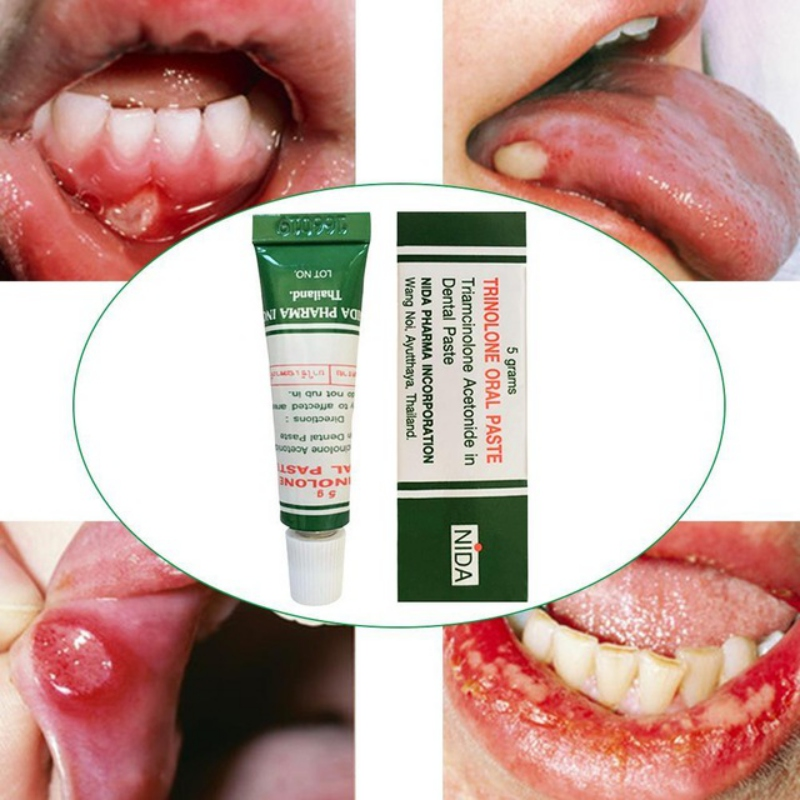Thailand Herb Oral Ulcers Cream Oral Inflammation Toothache Tongue Pain Ointment Dental Care Treatment Cream Plaster
