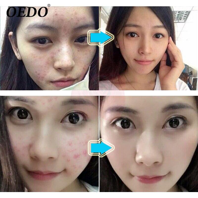 Acne Treatment Blackhead Remova Anti Acne Cream Oil Control Shrink Pores Acne Scar Remove Face Care Whitening 2