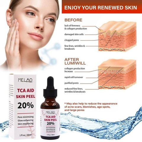 Tca Aid Skin Peel Face Serum Trichloroaectic Acid 20% Skin Peel Pore Minizing Wrinkles Spots Skin Care Face Serum 30ml Islamabad