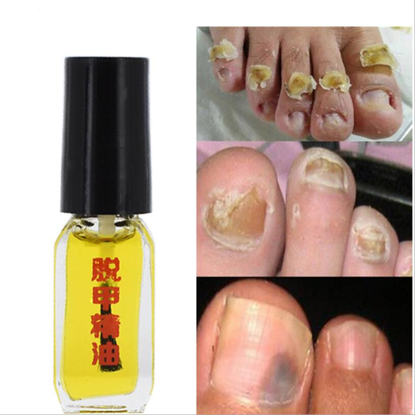 New 2021 3 Days Effect Treatment Removal of onychomycosis Paronychia Anti oil Fungal Nail Infection Toe Nail Fungus oil