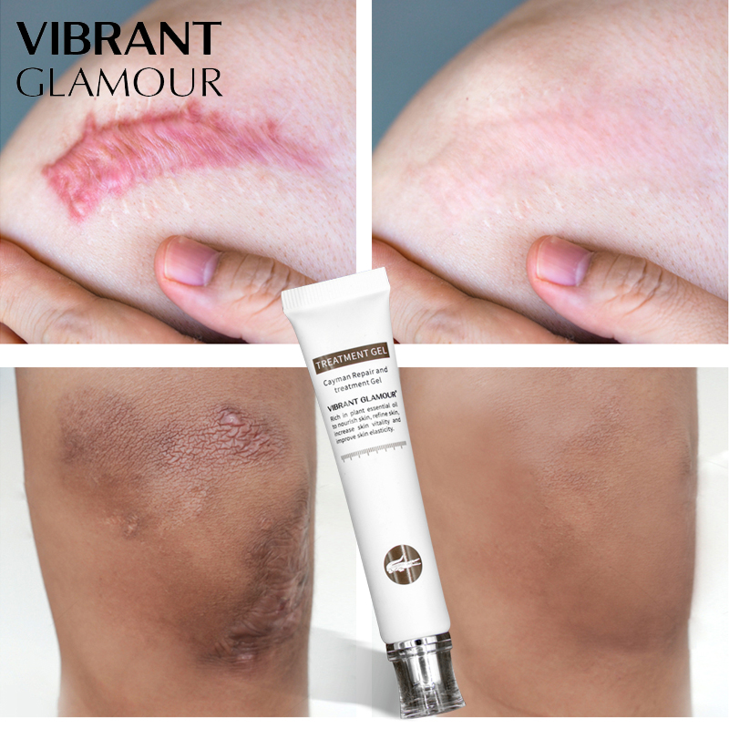 VIBRANT GLAMOUR Repair Scar Cream Removal Acne Scars Gel Stretch Marks Surgical Scar Burn  For Body Pigmentation Corrector Care