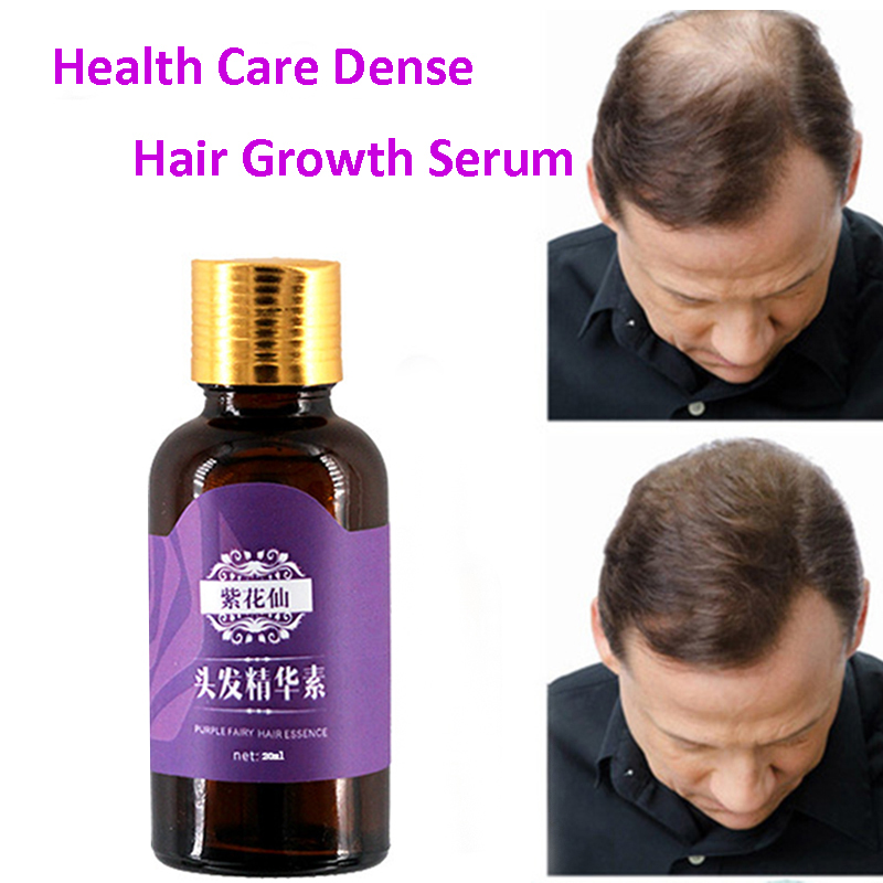 Купить с кэшбэком Hair Loss Products Natural With No Side Effects Grow Hair Faster Regrowth Hair Growth Products