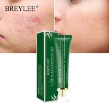 BREYLEE Acne Scar Removal Gel Fade Acne Marks Spots Remove Skin Pigmentation Soothing Prevent Acne Treatment Serum Essence 30g cheap Unisex Australian tea tree Nicotinamide salicylic acid BREAAAABY CHINA GZZZ 0422001 Fading and soothing acne marks Weaken acne scars and remove skin pigmentation