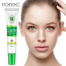 ROREC Natura Rejuvenation Moisturizing Acne Cream Anti Treatment Scar Removal Gel Whitening Shrink Pores For Face Skin Care
