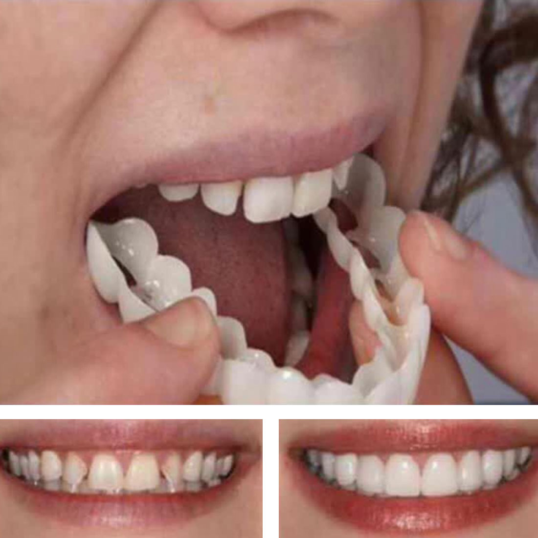 5pcs Temporary Denture Teeth Whitening Fake Tooth Cover Comfort Fit Snap Fake Upper Teeth Cosmetic Temporary Denture Tooth