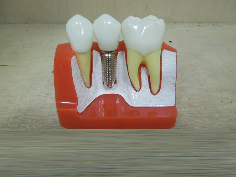 Image 5 - Dental Demonstration Teeth Model Implant Analysis Crown Bridge-in Teeth Whitening from Beauty & Health