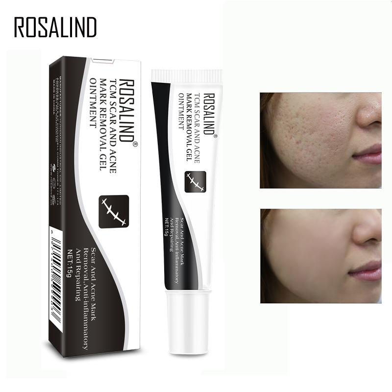 ROSALIND Acne Scar Treatment Stretch Marks Remover Face Cream Acne Age Spots Repairing Serum Nature Republic Whitening Cream