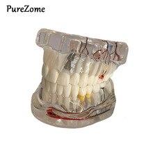Стоматологическое заболевание имплантата зубы модель с восстановлением мост палочки для очистки зубов для медицинского обучения, изучения