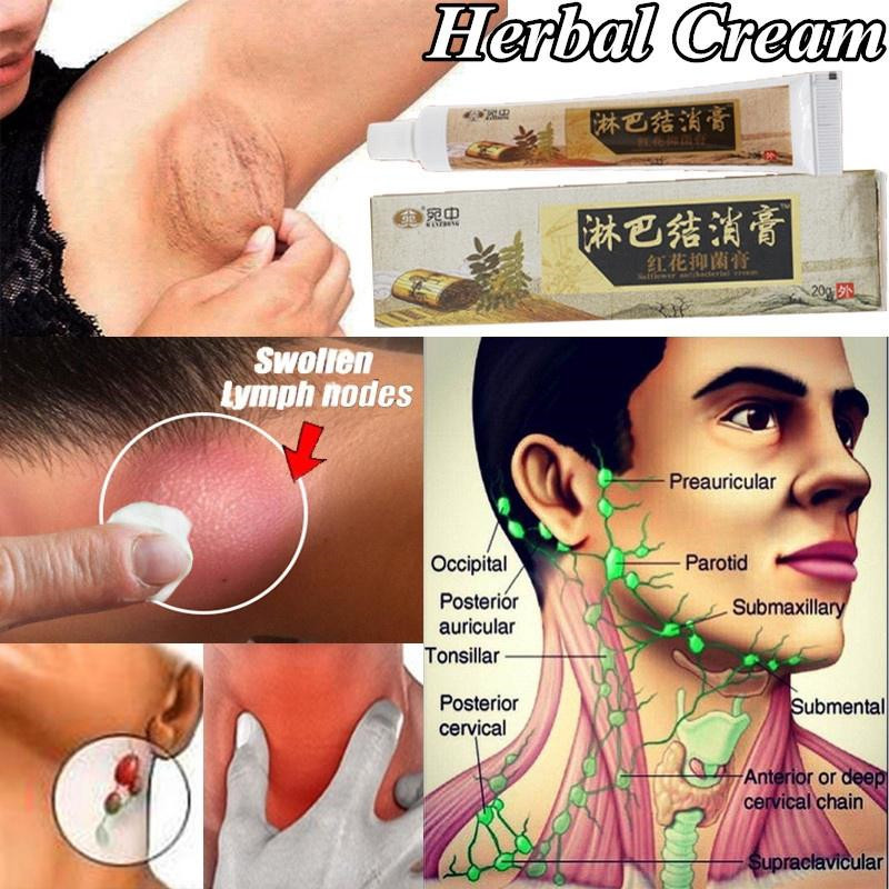 Effective Neck Lymphatic Ointment Health Care Cream To Improve Sleep Herbal Lymph Pads Detox Promote Blood Circulation Cream|Patches|   - AliExpress