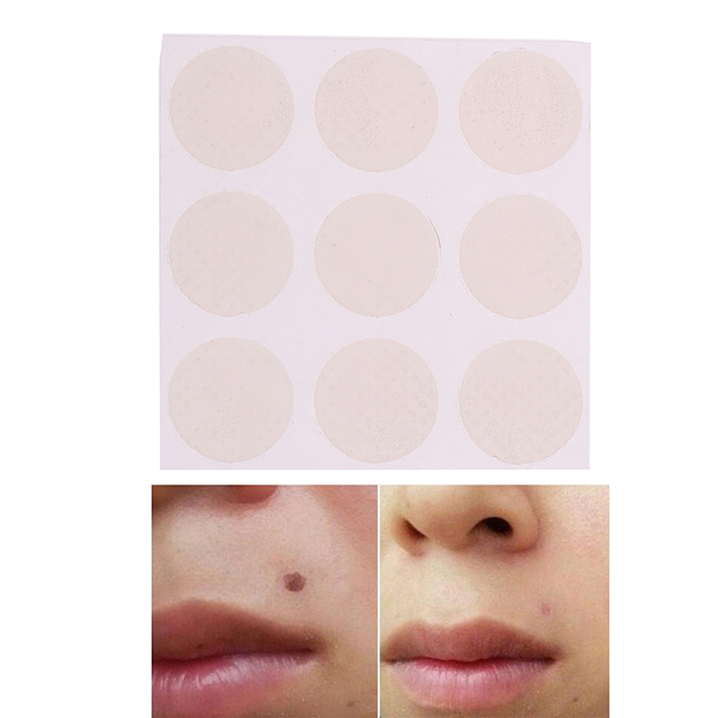 9Patches/sheet Silicone Gel Scar Sheet Removal Patch Reusable Acne Gel Scar Therapy Sheet Skin Repair Effect Dilute Acne Marks